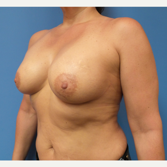52 year old woman treated with Breast Augmentation after 3543526