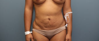35-44 year old woman treated with Tummy Tuck before 3657759