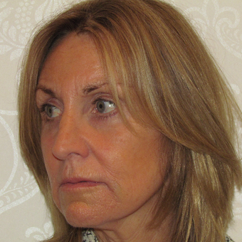 55-64 year old woman treated with Facelift after 3271701
