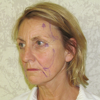 55-64 year old woman treated with Facelift before 3271701