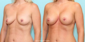 Mommy Makeover - Bilateral Dual Plane Augmentation + Mini Tummy Tuck after 1498828