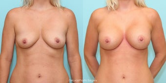 Mommy Makeover - Bilateral Dual Plane Augmentation + Mini Tummy Tuck before 1498828