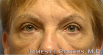 65-74 year old woman treated with Eyelid Surgery after 2085796