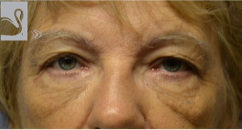 65-74 year old woman treated with Eyelid Surgery before 2085796