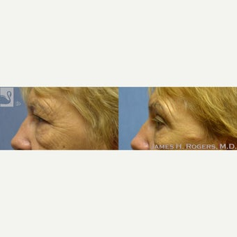 65-74 year old woman treated with Eyelid Surgery 2085796