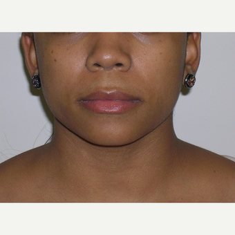 18-24 year old woman treated with Juvederm before 3547958