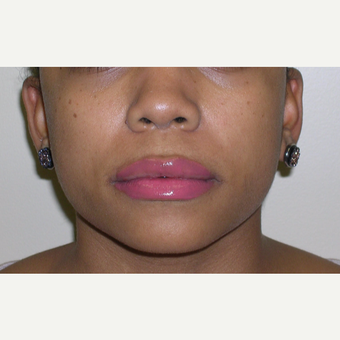 18-24 year old woman treated with Juvederm after 3547958
