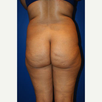 45-54 year old woman treated with Brazilian Butt Lift and liposuction before 3125814