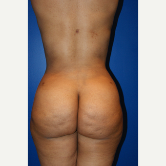 45-54 year old woman treated with Brazilian Butt Lift and liposuction after 3125814