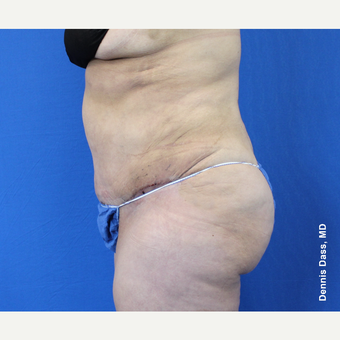 35-44 year old woman treated with Tummy Tuck after 3679847
