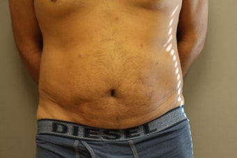 41 year old male, desires cosmetic improvement of abdomen before 1266712