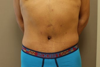 41 year old male, desires cosmetic improvement of abdomen after 1266712