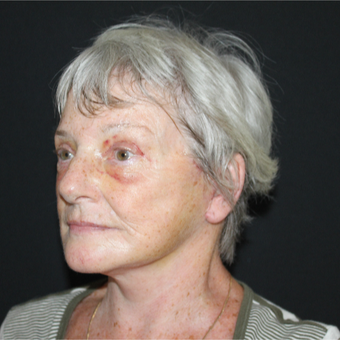 65-74 year old woman treated with Concept Facelift after 3463743
