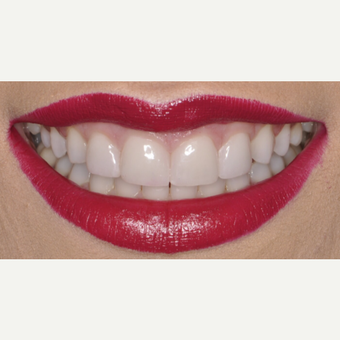 26 year old woman treated with Porcelain Veneers after 3543159
