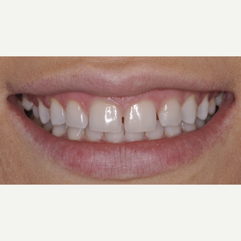 26 year old woman treated with Porcelain Veneers before 3543159