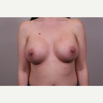 25-34 year old woman treated with Breast Augmentation after 3768715
