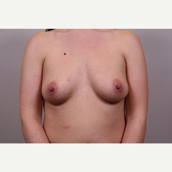 25-34 year old woman treated with Breast Augmentation before 3768715