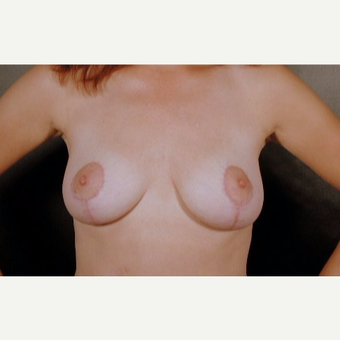 45-54 year old woman treated with Breast Lift after 3246215
