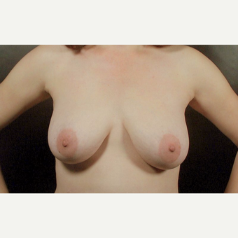 45-54 year old woman treated with Breast Lift before 3246215