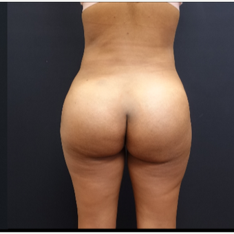 25-34 year old woman treated with Butt Implants after 3731720