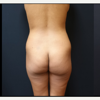 25-34 year old woman treated with Butt Implants before 3731720