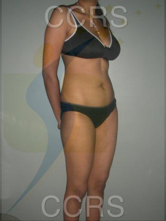 VASER lipo for body contouring 636257