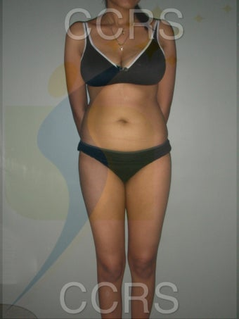 VASER lipo for body contouring before 636257