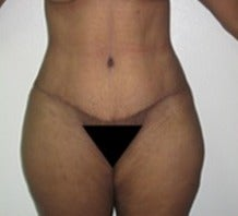 25-34 year old woman treated with Tummy Tuck 1634650