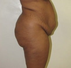 25-34 year old woman treated with Tummy Tuck before 1634650