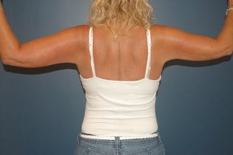 Arm lift or brachioplasty with short scar in the armpit. 1060943