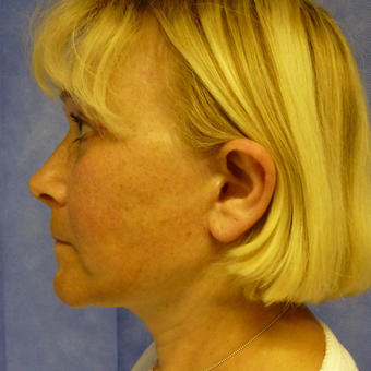 45-54 year old woman treated with Facelift after 3553821