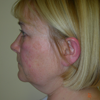 45-54 year old woman treated with Facelift before 3553821