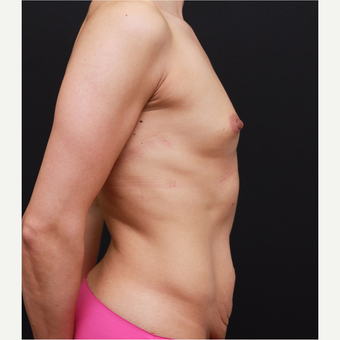 25-34 year old woman treated with Breast Augmentation before 3167759