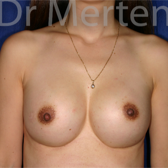 18-24 year old woman treated with Breast Augmentation after 3552616