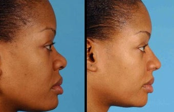 Augmentation rhinoplasty in young woman.
