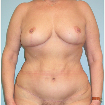 60 year old woman treated with Mommy Makeover after 3375440