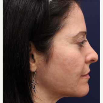 35-44 year old woman treated with Bellafill before 3142712