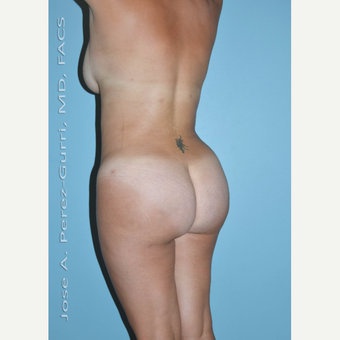 25-34 year old woman treated with Brazilian Butt Lift after 3056468