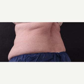 62 year old woman treated with CoolSculpting before 3221067