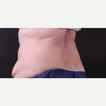 62 year old woman treated with CoolSculpting after 3221067