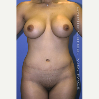 35-44 year old woman treated with Mommy Makeover after 3010190