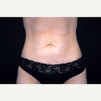 35-44 year old woman treated with Tummy Tuck before 3281011