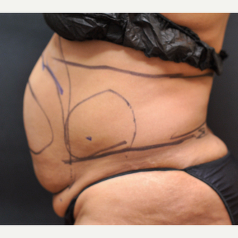 55-64 year old woman treated with Laser Liposuction to stomach and love handles (lipo 360)