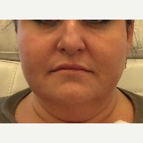 Lip Enhancement: 45-54 year old woman treated with Juvederm after 2132385