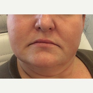 Lip Enhancement: 45-54 year old woman treated with Juvederm before 2132385