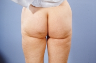 Liposuction after 3446257