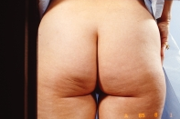 Liposuction before 3446257