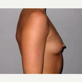 Breast Augmentation before 3680770