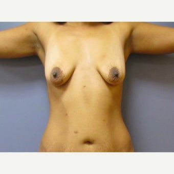 35 year old woman treated with a Breast Lift with 275 cc silicone breast implants before 2550358