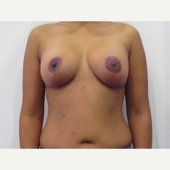 35 year old woman treated with a Breast Lift with 275 cc silicone breast implants after 2550358